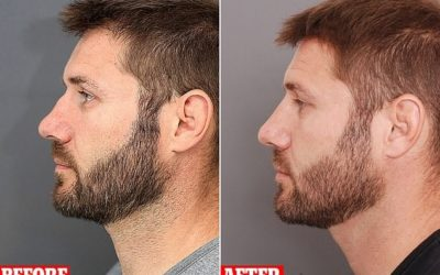Non-Surgical Nose Rhinoplasty