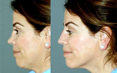 Lydia Badia explains how the appearance of your nose can be altered without surgery The PMFA Journal