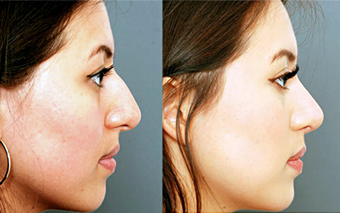 Charles East explains how preservation techniques can improve rhinoplasty outcomes in The PMFA Journal