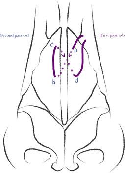 Criss-cross suture fixation.