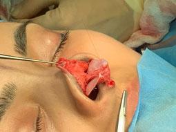 Retensioning the deep soft tissues