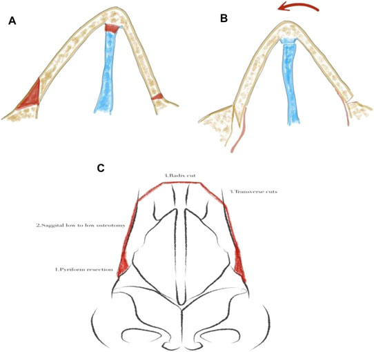Schematic for preservation osteotomies in a deviated nose